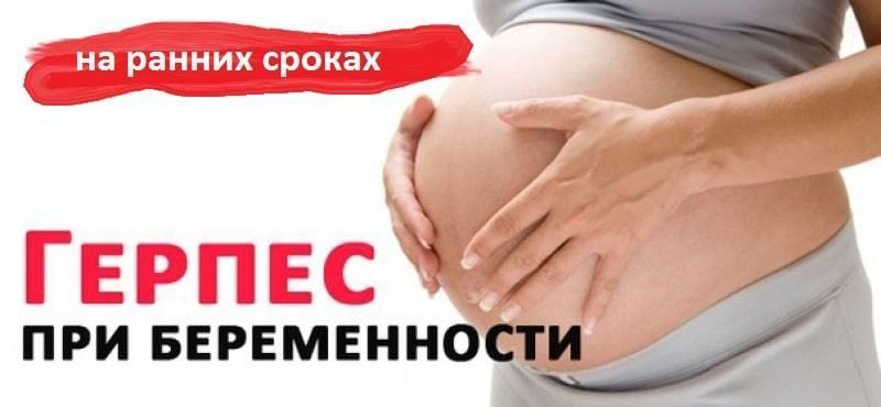 Герпес во время беременности последствия для ребенка