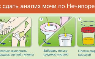 Как правильно сдавать мочу при беременности с ваткой