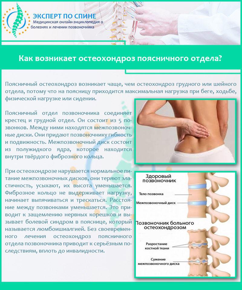 Диагностика и лечение остеохондроза во время беременности