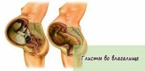 Глисты при беременности — симптомы, лечение и профилактика