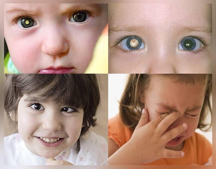 Косоглазие у новорожденных до года – когда проходит, причины и лечение (фото)