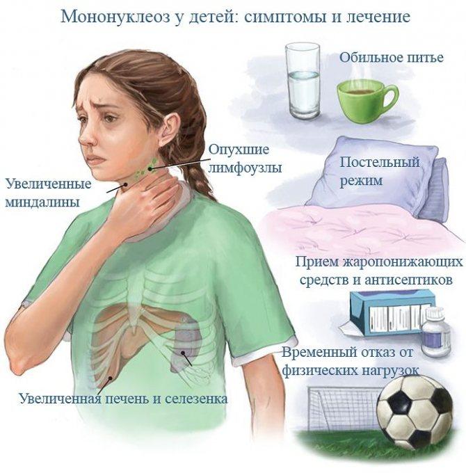 Диета при мононуклеозе у детей: питание во время и после инфекционного мононуклеоза, комаровский