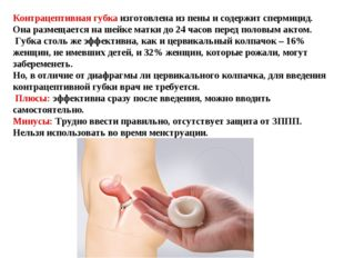 Контрацептивная губка — особенности противозачаточного средства