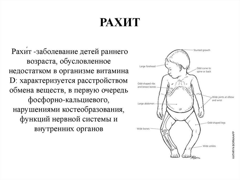 Рахит: признаки, причины, лечение и профилактика / mama66.ru
