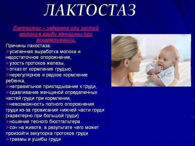 Лактостаз у кормящей матери: симптомы, лечение, как предотвратить застой молока