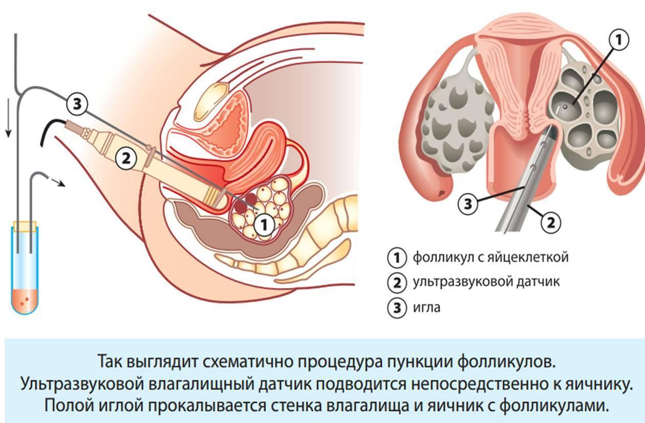 Как происходит пункция яичников при эко, восстановление после операции и последствия процедуры