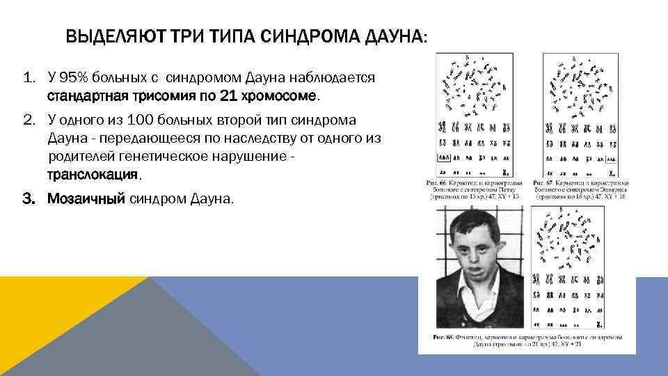 Врачи не знают, почему дети с синдромом дауна такие разные | милосердие.ru