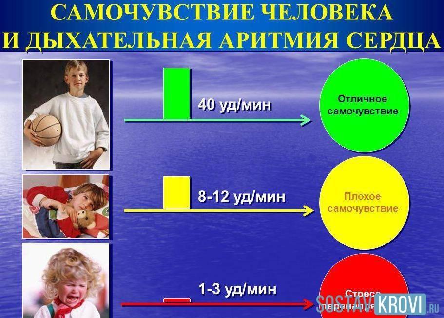 Синусовая аритмия у детей комаровский
