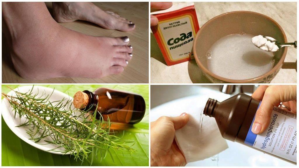Укус мошки: лечение народными средствами, чем мазать | компетентно о здоровье на ilive