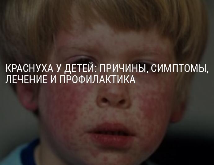 Краснуха у детей: фото, симптомы и лечение, профилактика