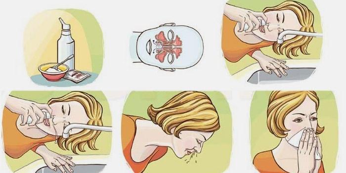 Как пробить нос без капель: быстро почистить от соплей в домашних условиях, открыть насморк при быстрой заложенности народными средствами