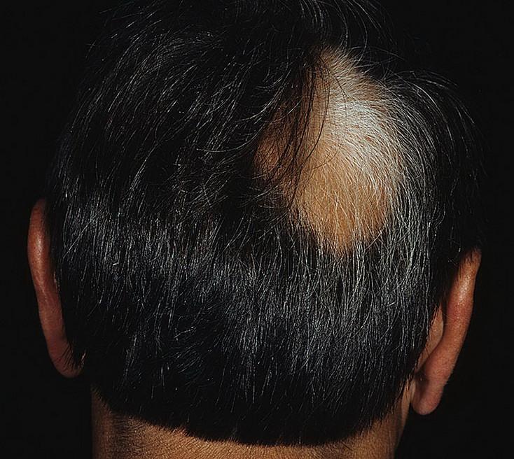 Причины, симптомы, стадии гнездной алопеции у женщин, и как можно остановить выпадение волос | | prod make up