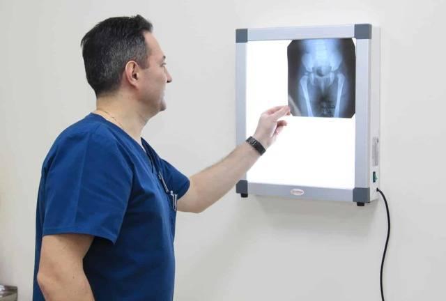 Что показывает рентген грудной клетки при коронавирусе?