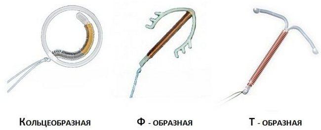 Спираль после родов. когда можно ставить спираль после родов?