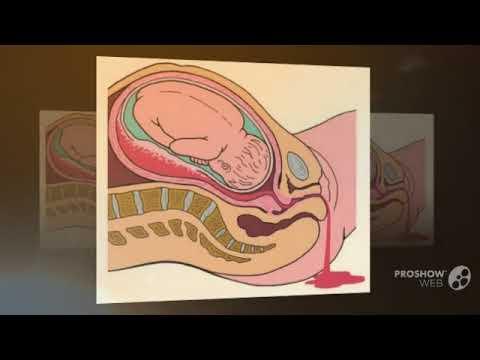 Что такое гипоксия плода при беременности на 36 неделе