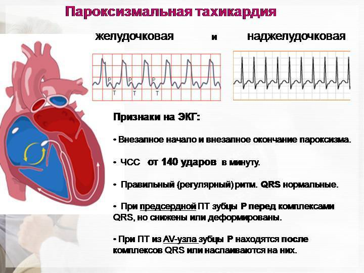 Выраженная тахикардия у ребенка | лечение сердца