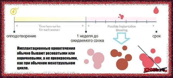 Имплантационное кровотечение: фото на прокладке, на какой день после зачатия