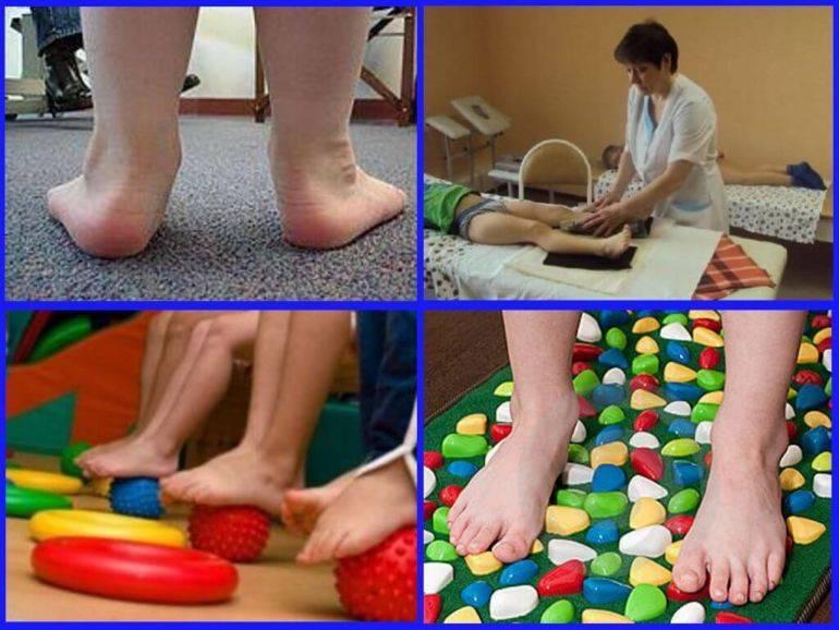 Плоскостопие у детей: причины возникновения, лечение и профилактика