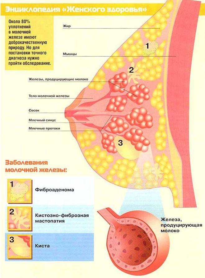 Уплотнение в молочной железе при грудном вскармливании: что это такое, причины и лечение
