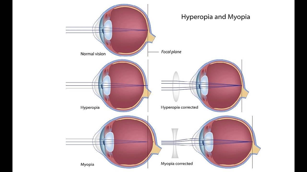 Синдром спазма аккомодации глаз у детей: причины и лечение нарушения