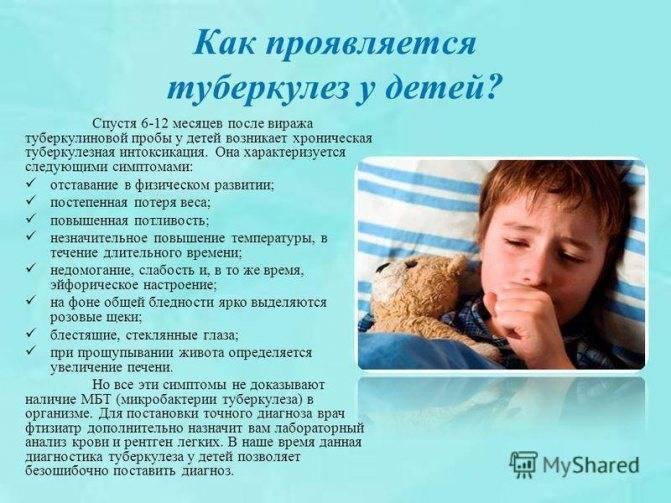 Как проявляется туберкулез на ранних стадиях у детей?