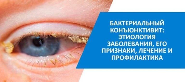 Первые признаки и симптомы конъюнктивита у детей oculistic.ru первые признаки и симптомы конъюнктивита у детей