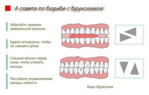 Почему ребенок скрипит зубами во сне: причины скрежета днем и ночью когда спит, методы лечения комаровского