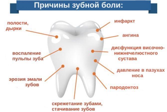 Как снять острую зубную боль в домашних условиях быстро и безопасно