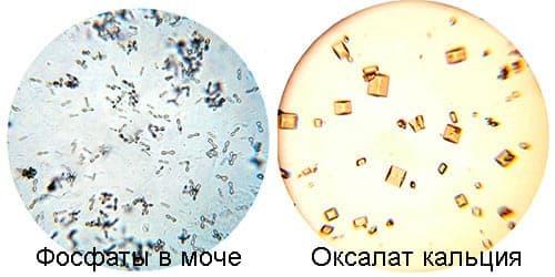 Аморфные фосфаты (кристаллы) в моче у ребенка:причины, лечение и диета