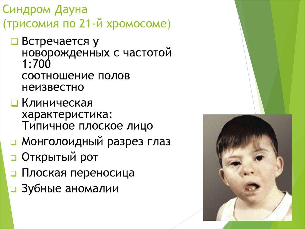 Синдром дауна: признаки, причины, оценка риска | азбука здоровья