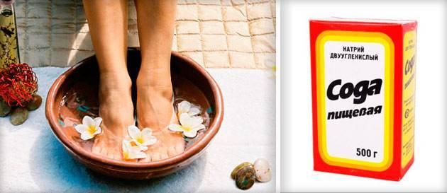 Как справиться с неприятным запахом ног народными средствами