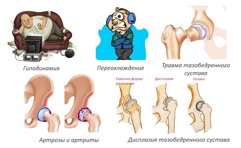 Артрит у детей: причины, виды, симптомы и лечение, характерные особенности