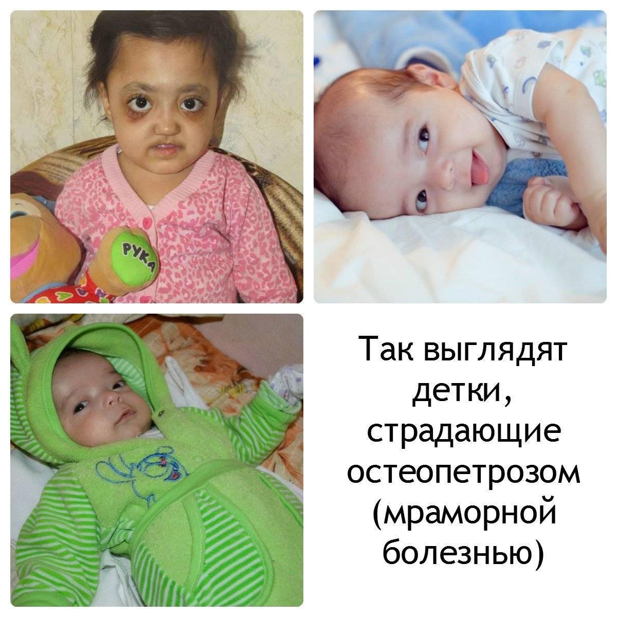 Остеопетроз у детей: причины, симптомы и лечение мраморной болезни с фото