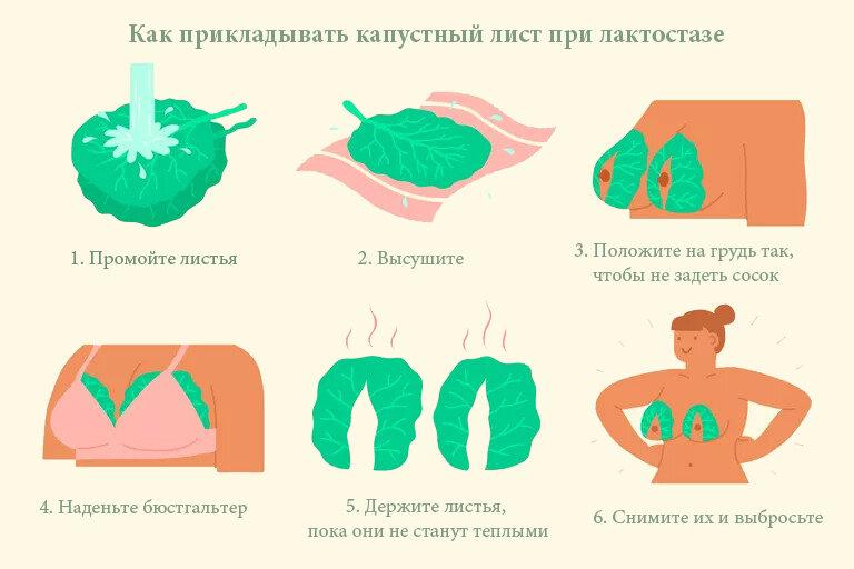 Капустный лист и еще 8 способов лечения мастита: что можно, что нельзя. капустный лист от мастита