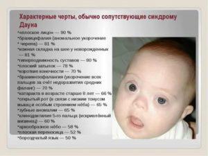 """Признаки синдрома дауна малыша: в утробе и после рождения  — журнал """"рутвет"""""""
