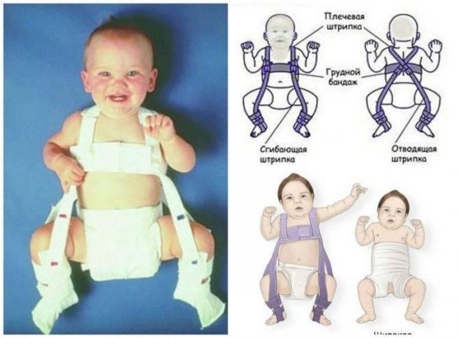 Причины дисплазии тазобедренных суставов у детей, симптомы и лечение