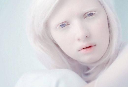 Человек - альбинос: 8 типов альбинизма, 4 ведущих симптома и о прогнозе жизни для особенных людей