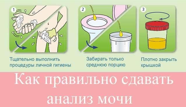 Как правильно сдавать мочу при беременности с ваткой - мама