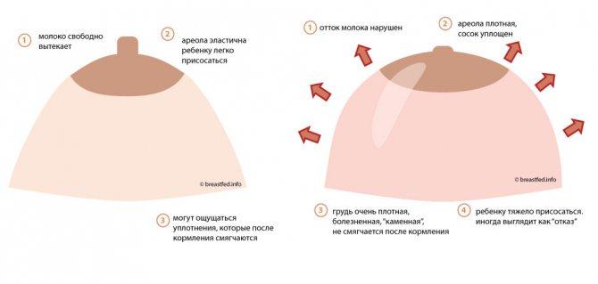 Болит грудь при гв: причины, симптомы, способы диагностики и лечения