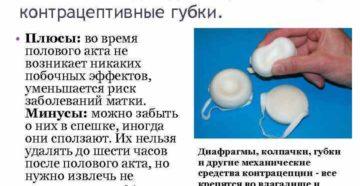 Контрацептивные губки: вагинальное противозачаточное средство