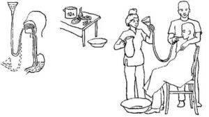 Промывание желудка у детей в домашних условиях: лучшие средства и алгоритм действий | konstruktor-diety.ru