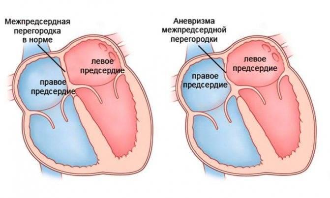 Дефект межпредсердной перегородки у детей - здоров.сердцем
