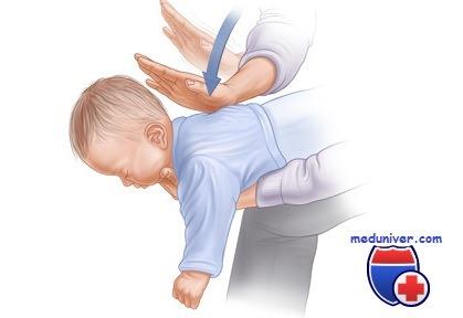Что делать, если ребёнок подавился? Инструкция от врача-педиатра
