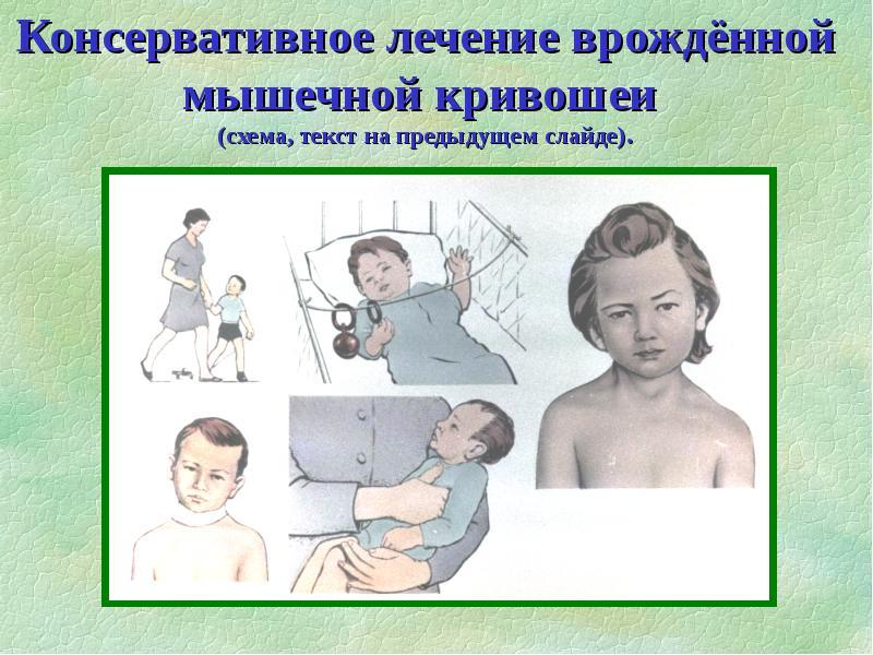 Кривошея у грудничка: симптомы и лечение