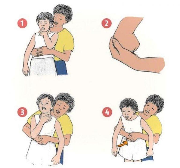 Что делать, если ребенок подавился: молоком, едой и задыхается