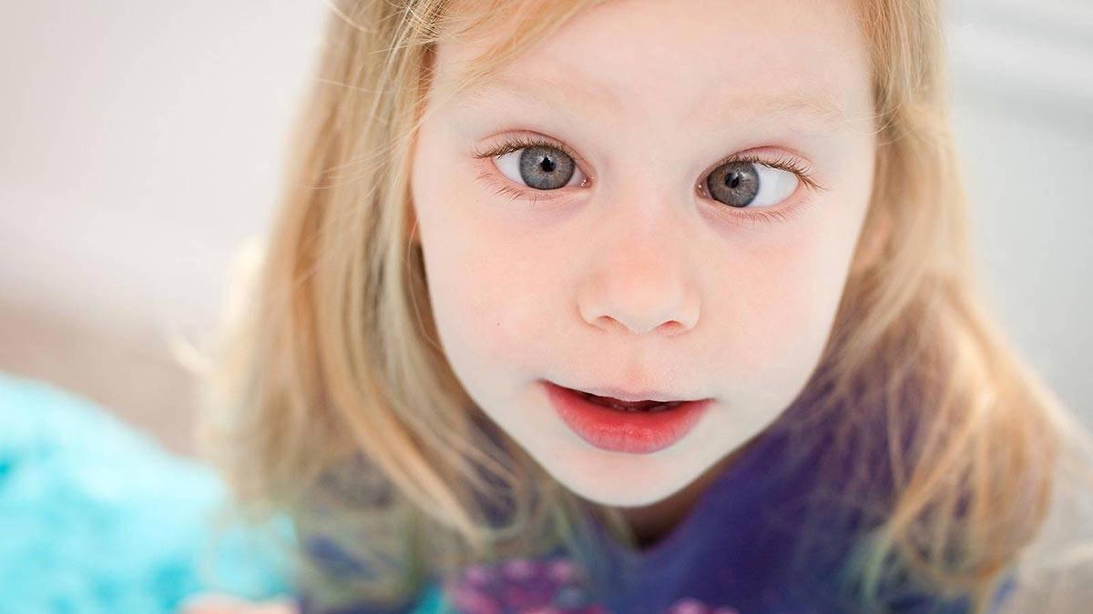 Разные виды косоглазия у детей: причины и лечение