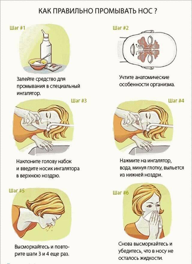 Ингаляции в домашних условиях при насморке и заложенности носа: как и с чем делать без ингалятора, 12 средств: щелочные, с эвкалиптом, содовые, масляные, с морской солью, с эфирными маслами, можно ли принимать пульмикорт