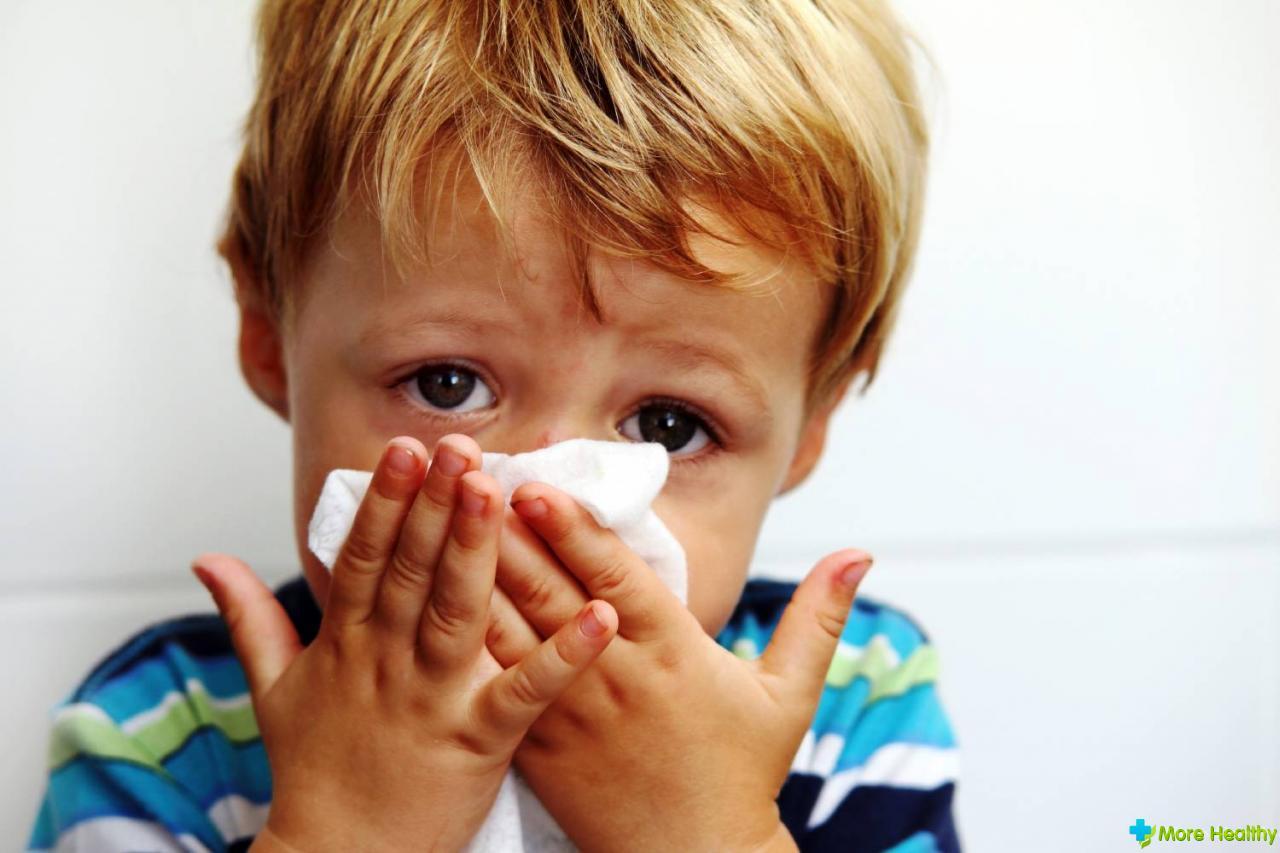 Лечение насморка у детей народными средствами: методы для детей от года, как быстро вылечить