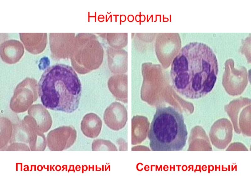Нейтрофилы понижены, лимфоциты повышены – признак проблем с иммунитетом