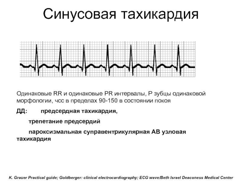 Чем опасна синусовая тахикардия сердца | лечение сердца